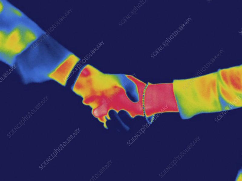 Thermogram, Shaking hands, temp variation