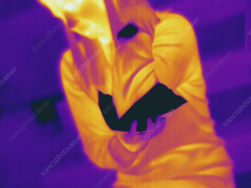 Thermogram of female holding ice pack