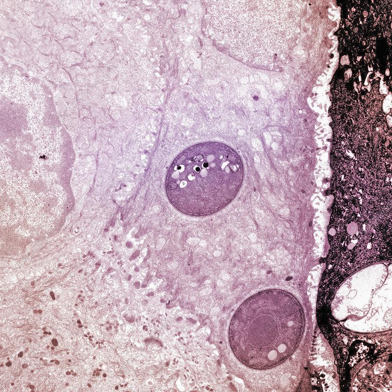 Fungus (Batrachochytrium dendrobatidis)