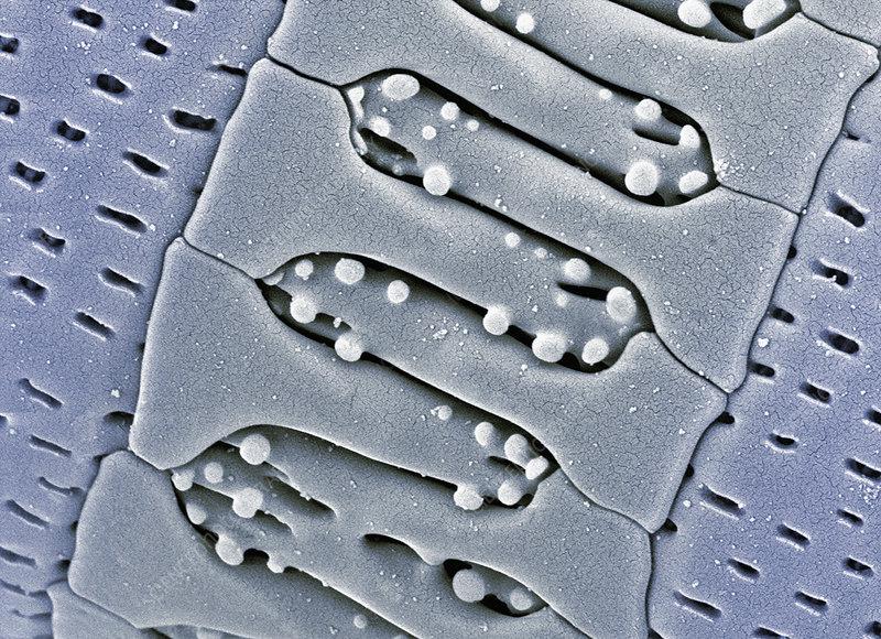 Aitalica Diatom frustule close-up SEM