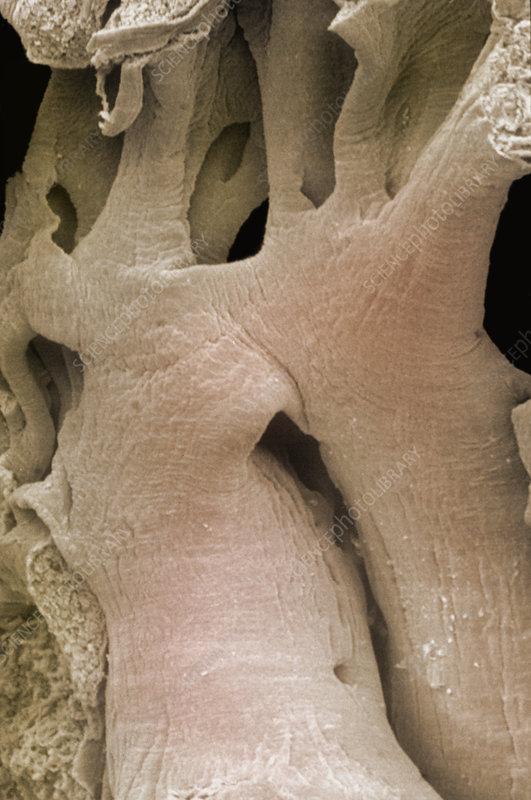 Pectinate muscle in heart atrium. SEM