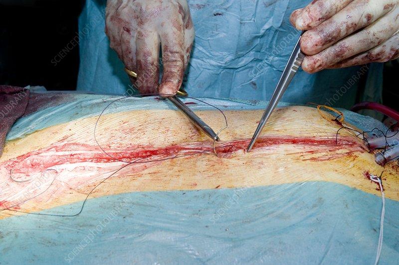 Aorta surgery