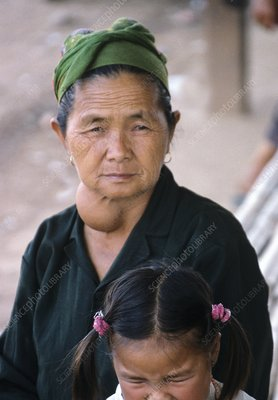 Woman with a goitre, Laos