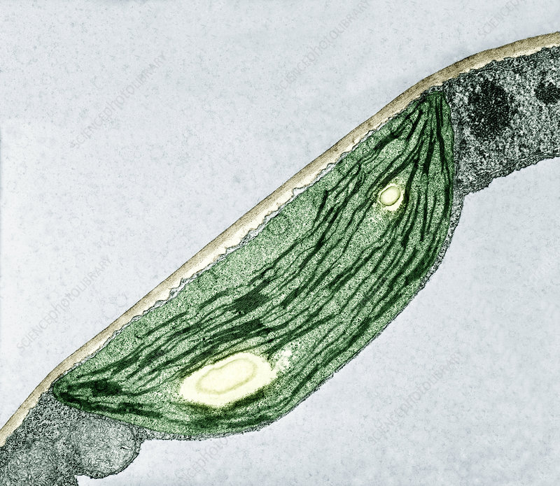 Cross-section of a Sunflower chloroplast