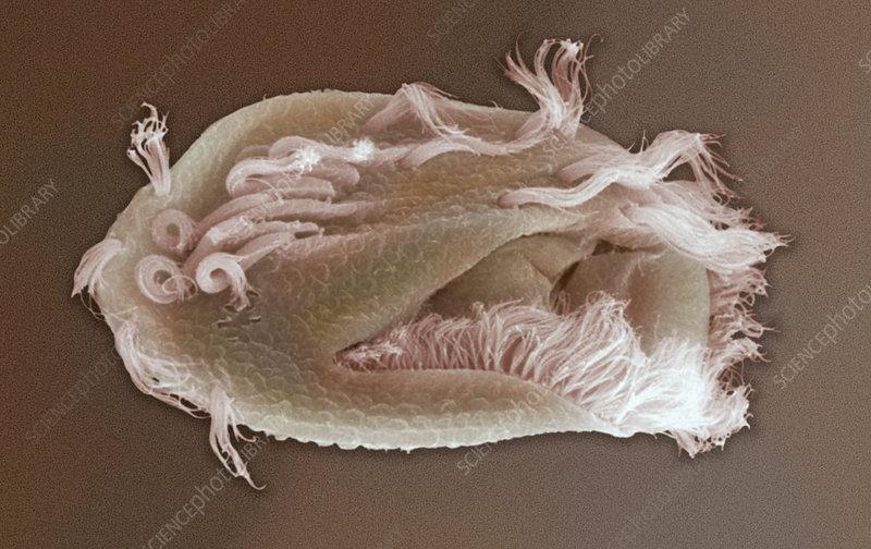 Ciliate Protozoan Euplotes. SEM
