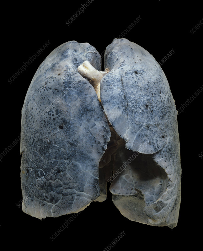 A smoker's damaged lungs