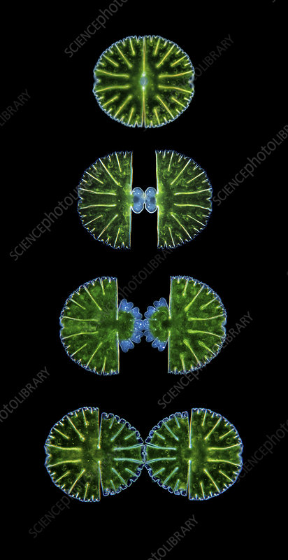 Cell division of the Desmid, green algae