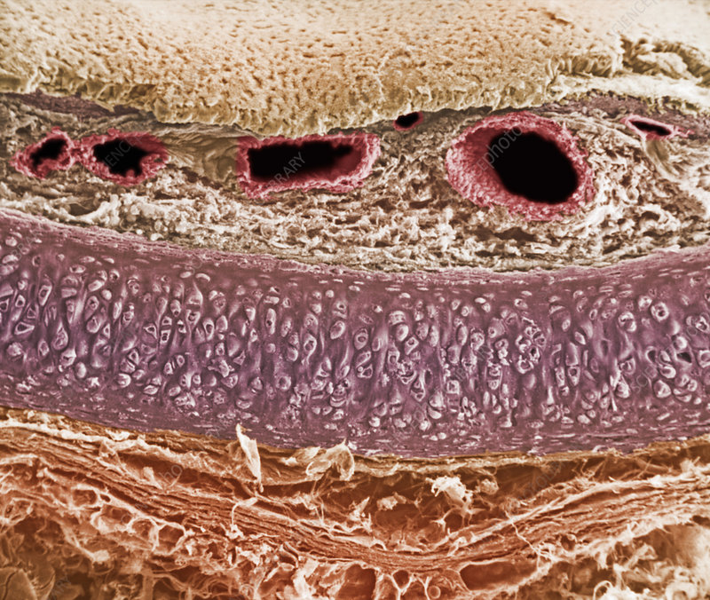 Cross-section of the trachea, SEM