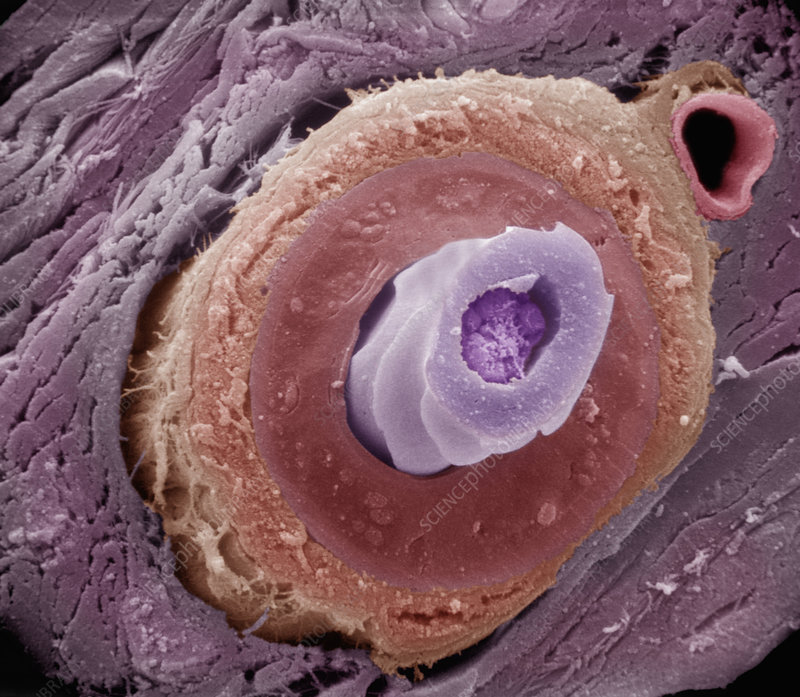 Transverse section mammal hair follicle