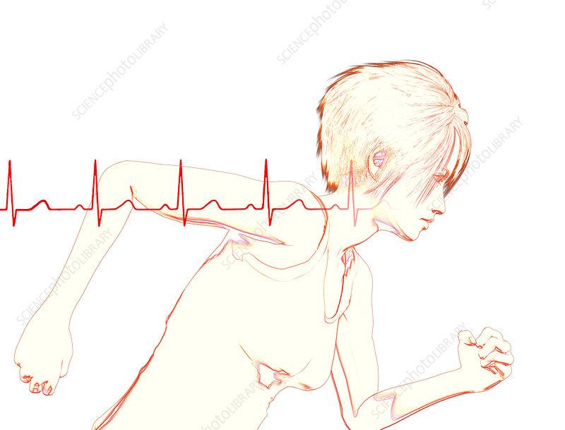 Female runner with EKG