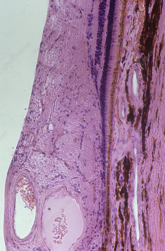 Section of the retina fovea centralis. LM