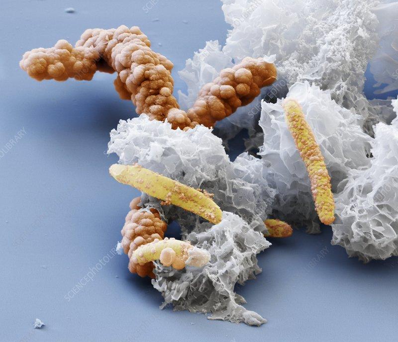 Acidovorax bacteria, SEM