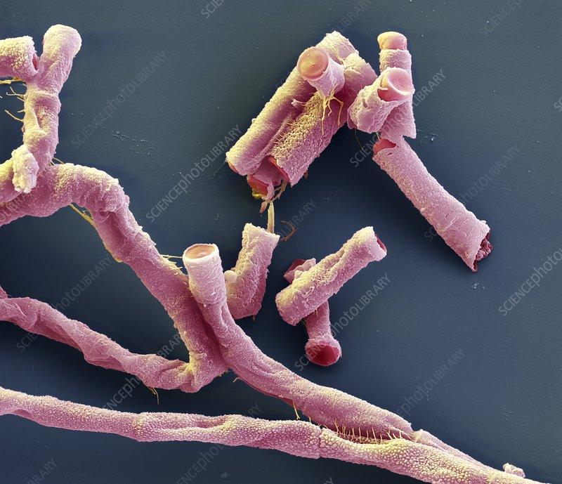Anthrax bacteria, SEM
