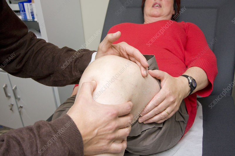 Knee, semiology woman