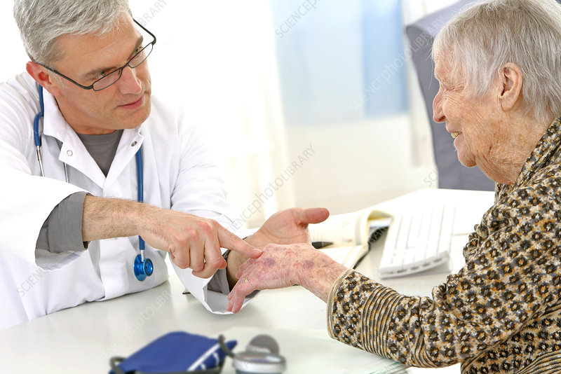 Hand, semiology, elderly person