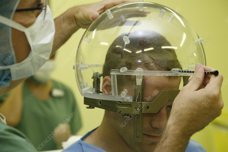 Stereotactic surgery