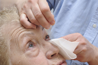 Elderly person using eye lotion