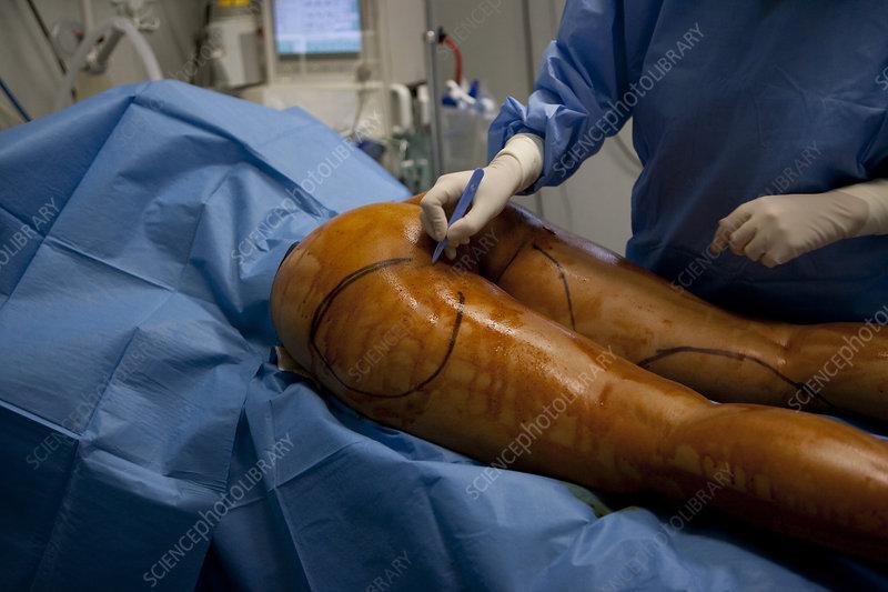 Liposuction Before & After - Gynecomastia in Scottsdale AZ