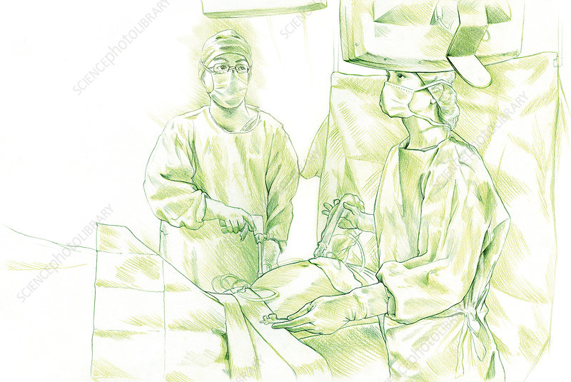 Laparoscopy drawing