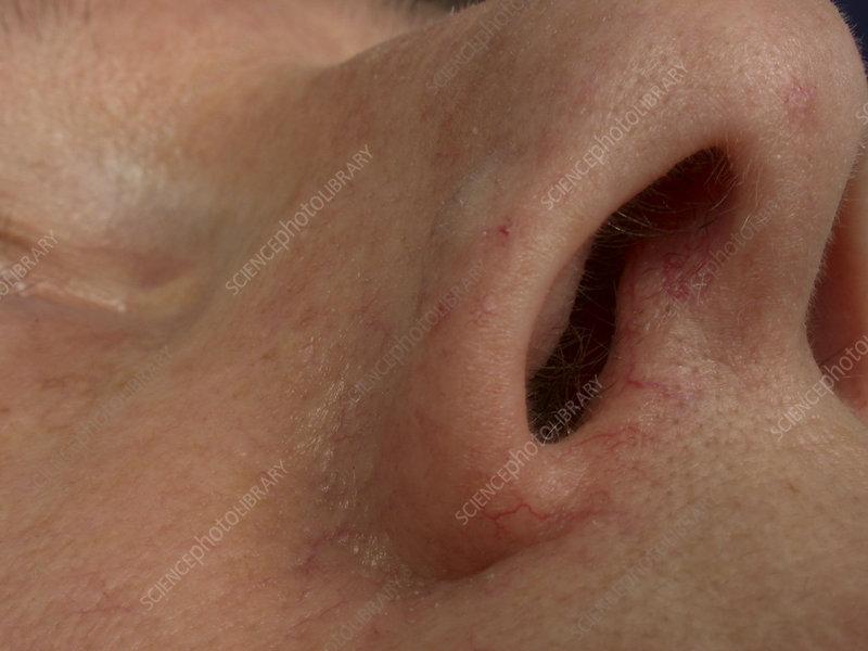 Tumor: Skin Tumor