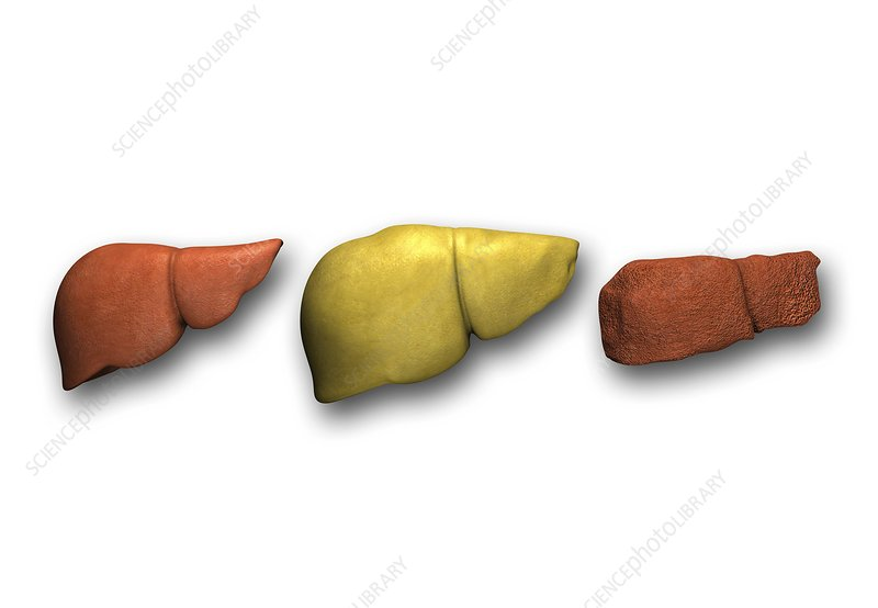 Liver: normal, fatty, cirrhotic