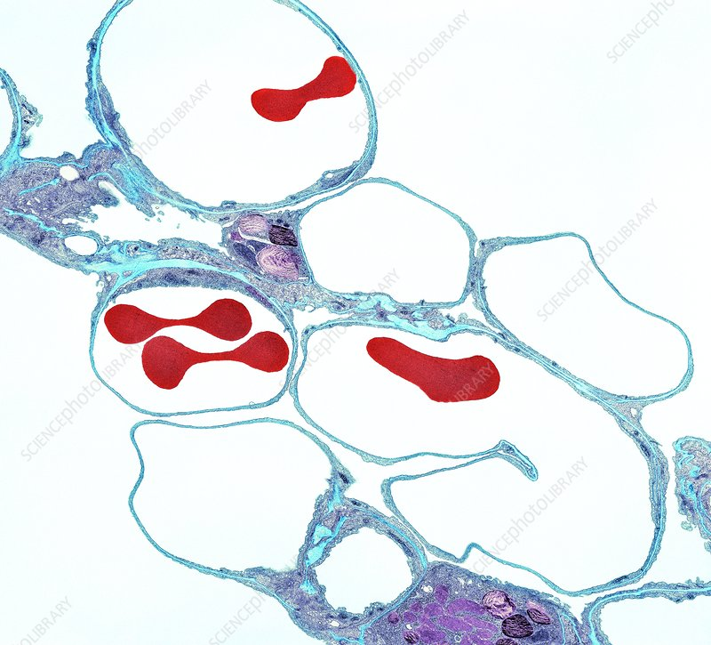 Lung alveoli and red blood cells, TEM