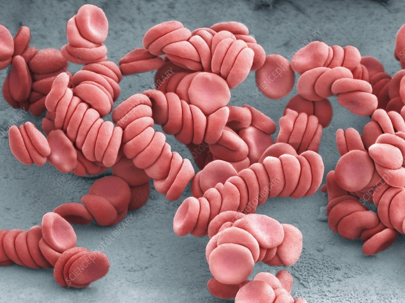 Stacked red blood cells, SEM