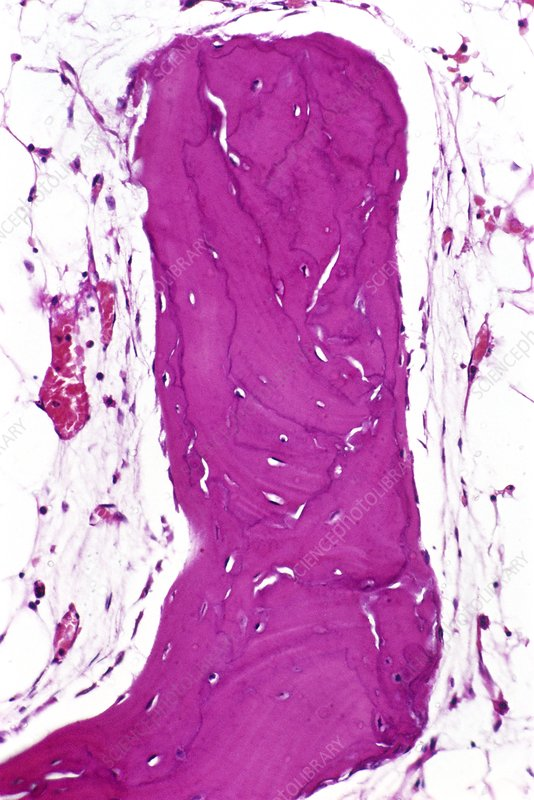 Paget's disease, light micrograph