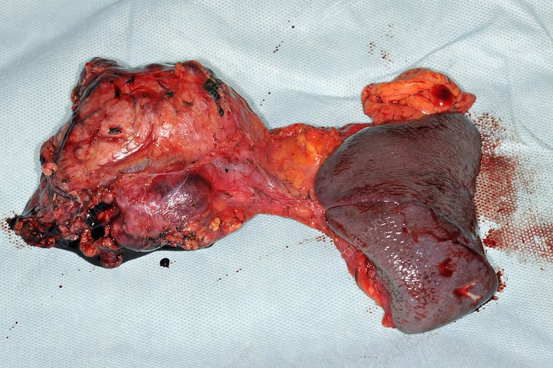 Pancreatic cancer surgery
