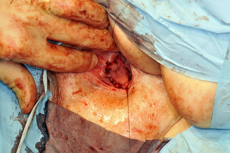 Rectal prolapse surgery