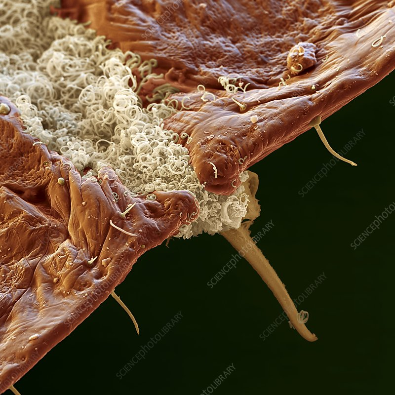 Scale insect secretions, SEM