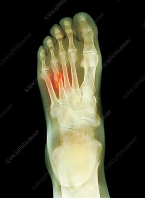 Fractured foot, X-ray