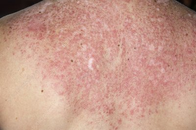 Lupus rash on back triggered by sun