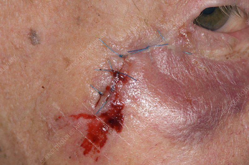 Sutured laceration to the face