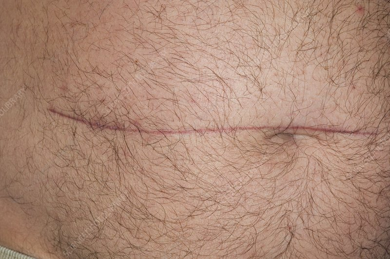 Scar On Abdomen To Treat Colon Cancer Stock Image C006 9200 Science Photo Library