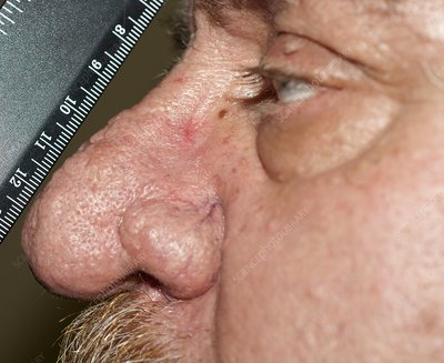 Rhinophyma of the nose