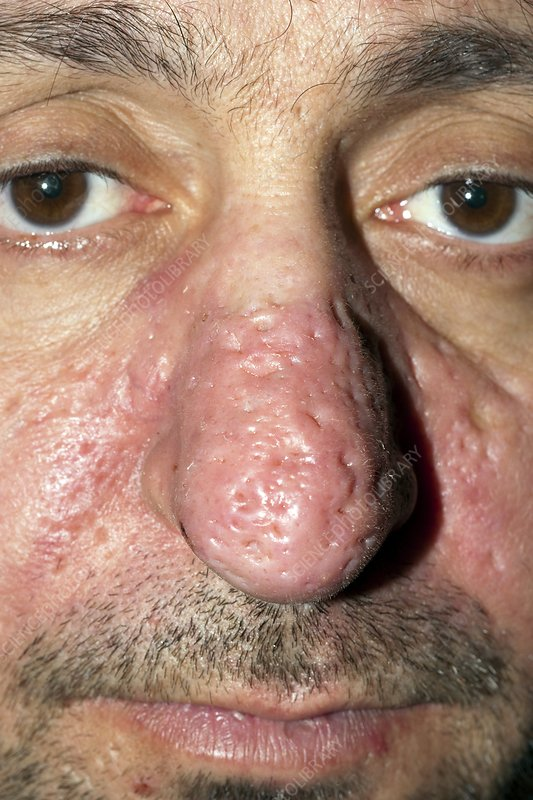 Rhinophyma Of The Nose Stock Image C007 0667 Science Photo Library