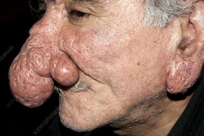 Rhinophyma of the nose and ear