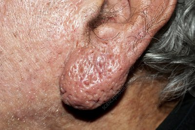 Rhinophyma of the ear