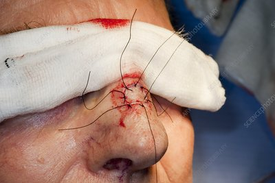 Basal cell carcinoma surgery