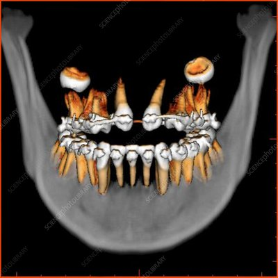 Teeth, 3D CT scan