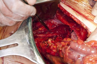 Bowel cancer surgery