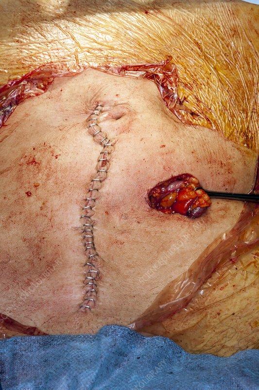 Bowel cancer surgery