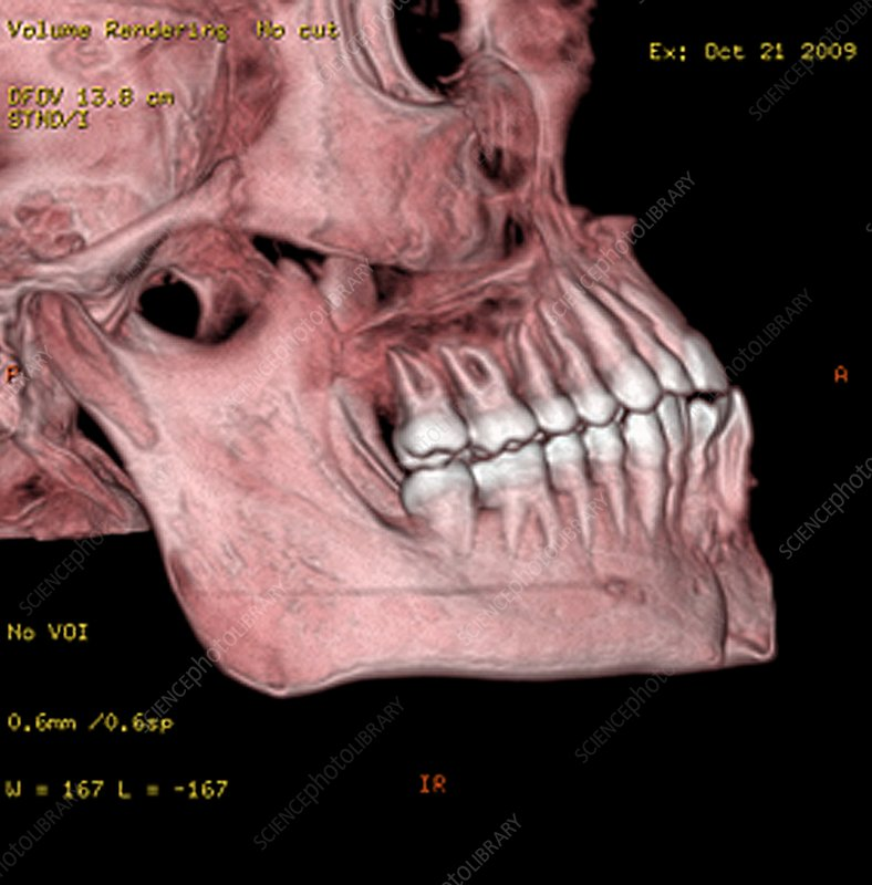 Broken chin, 3D CT scan