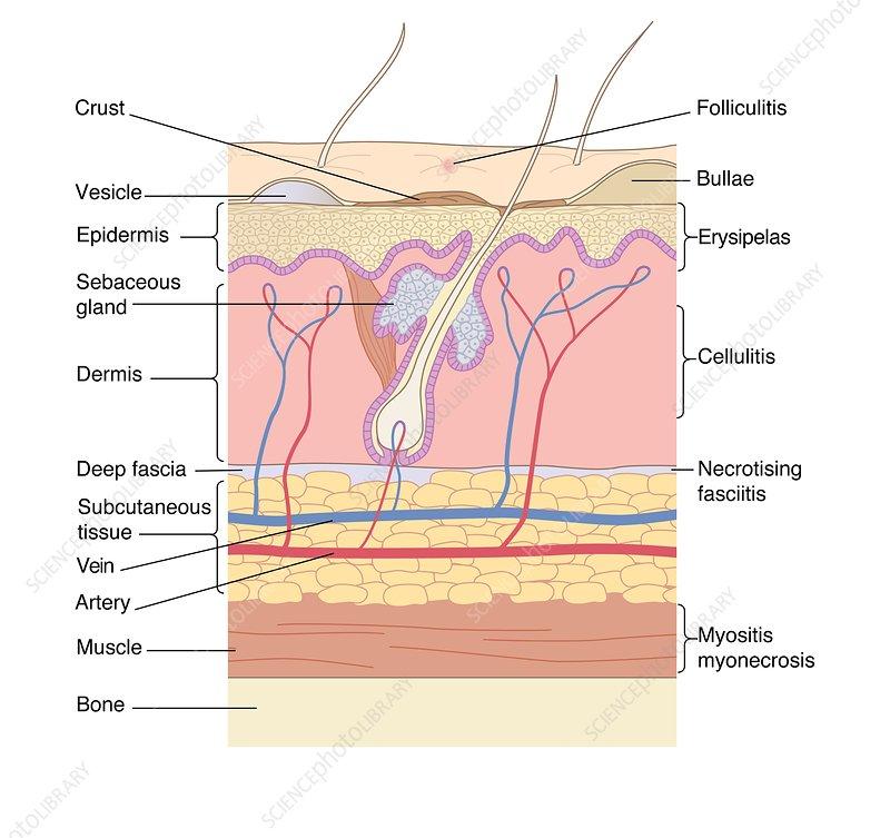 printable skin diagram skin disorders, artwork - stock image c007/0912 - science ... back skin diagram #11