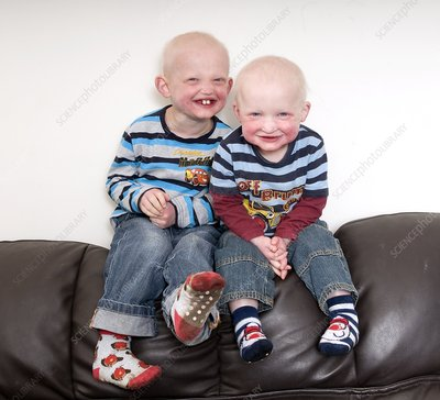 Brothers with ectodermal dysplasia - Stock Image C007/1726 ...