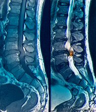 Spinal nerve pain, MRI scans
