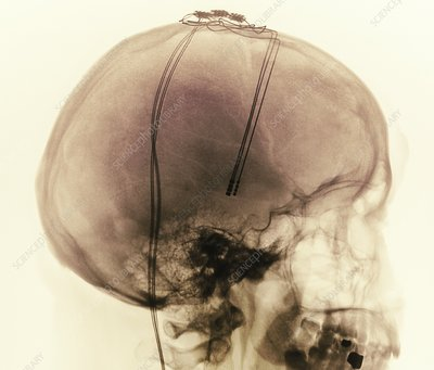 Deep brain stimulation electrodes, X-ray
