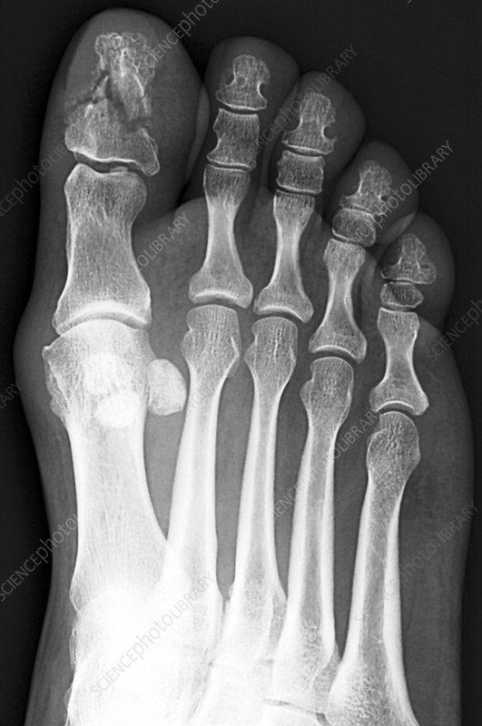 broken toe. Broken toe bone, X-ray