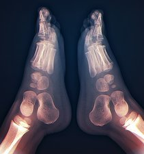 Childhood bone development, feet X-ray